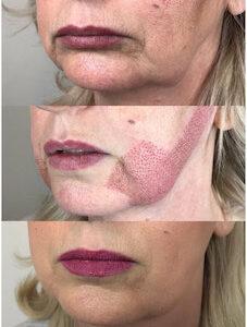 fibroblast mouthj